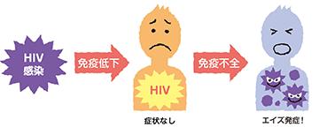 エイズ/HIV感染症
